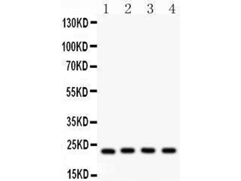 Western Blotting (WB) image for anti-BCL2-Antagonist/killer 1 (BAK1) (AA 22-211) antibody (ABIN3042342)
