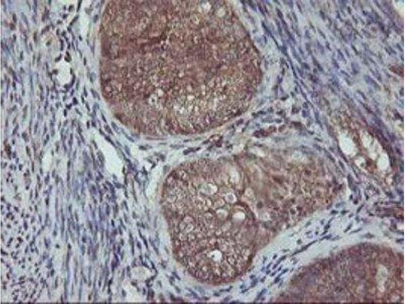 Immunohistochemistry (Paraffin-embedded Sections) (IHC (p)) image for anti-AKT antibody (V-Akt Murine Thymoma Viral Oncogene Homolog 1) (ABIN4279004)