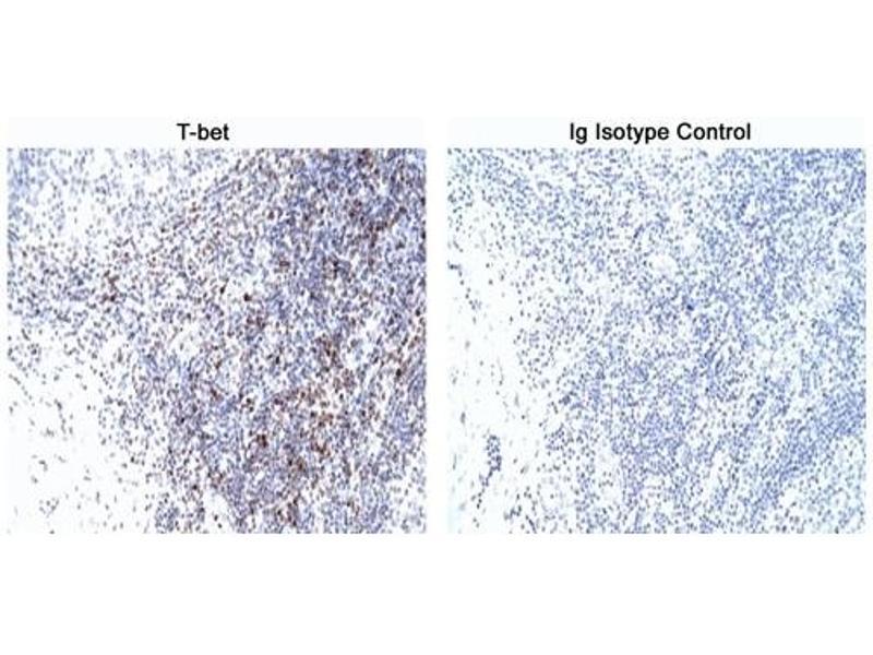 Immunohistochemistry (IHC) image for anti-T-Bet antibody (ABIN967673)