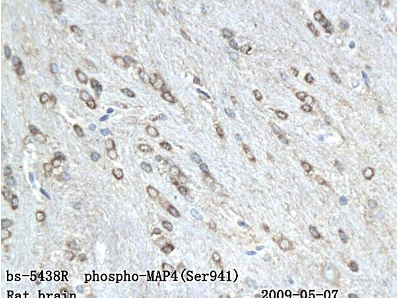 Immunohistochemistry (IHC) image for anti-MAP4 antibody (Microtubule-Associated Protein 4) (pSer941) (ABIN802068)