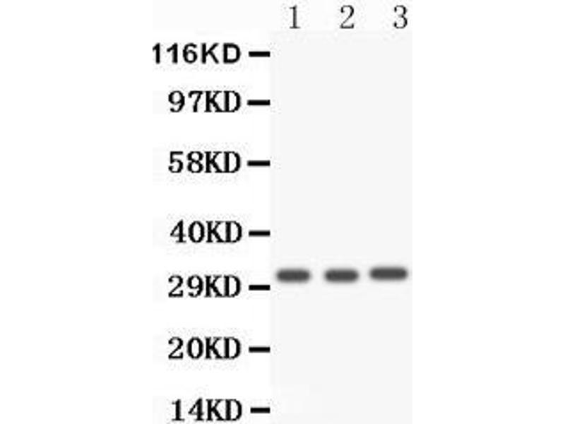 Western Blotting (WB) image for anti-Caspase 3, Apoptosis-Related Cysteine Peptidase (CASP3) (AA 67-175) antibody (ABIN3043802)
