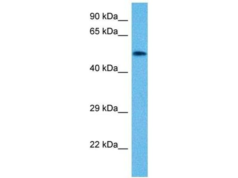 Western Blotting (WB) image for anti-Vimentin (VIM) (N-Term) antibody (ABIN2773915)