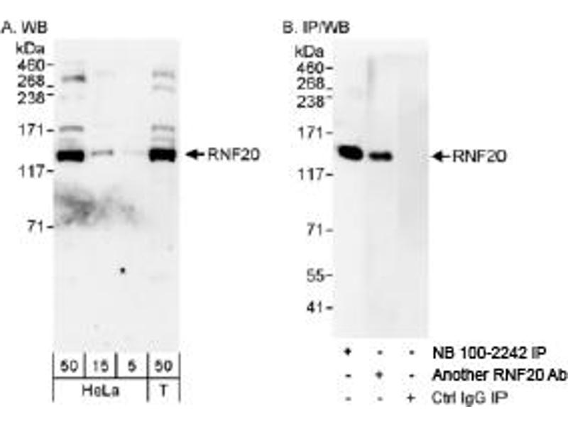 Western Blotting (WB) image for anti-RNF20 antibody (Ring Finger Protein 20) (AA 1-50) (ABIN151665)