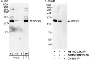 Western Blotting (WB) image for anti-Ring Finger Protein 20 (RNF20) antibody (ABIN151665)