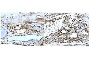Immunohistochemistry (IHC) image for anti-TEK antibody (TEK Tyrosine Kinase, Endothelial) (Extracellular Domain) (ABIN259889)