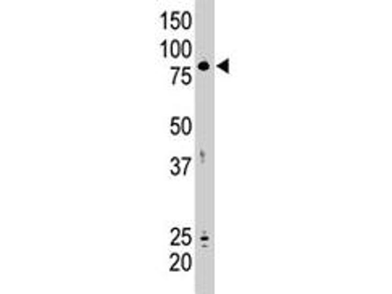 Western Blotting (WB) image for anti-SMAD Specific E3 Ubiquitin Protein Ligase 2 (SMURF2) antibody (ABIN542769)
