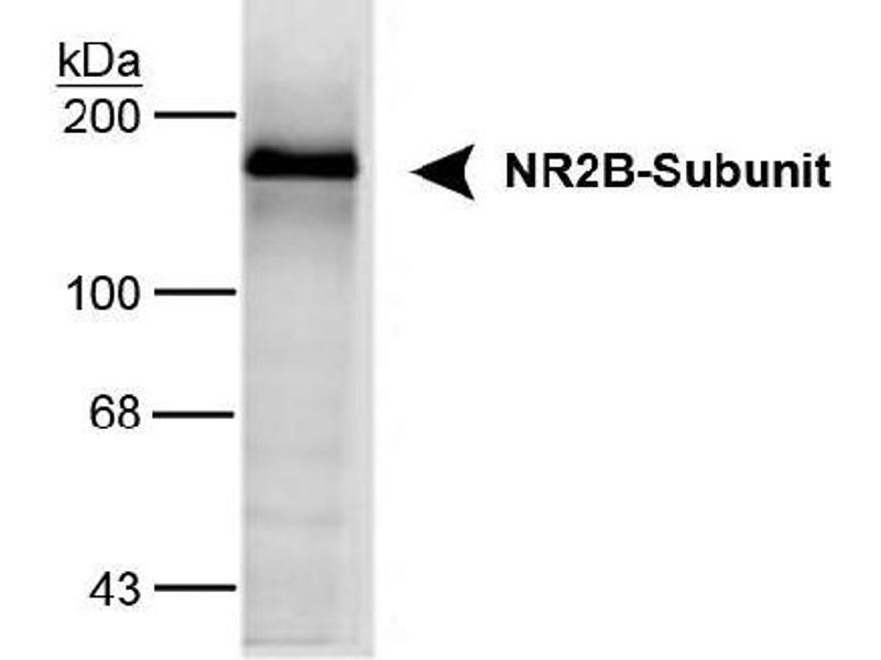 Western Blotting (WB) image for anti-Glutamate Receptor, Ionotropic, N-Methyl D-Aspartate 2B (GRIN2B) (C-Term) antibody (ABIN152455)