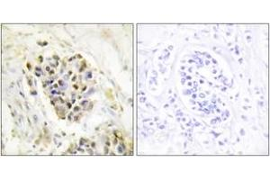 Image no. 1 for anti-Mediator Complex Subunit 1 (MED1) (AA 641-690) antibody (ABIN1533917)