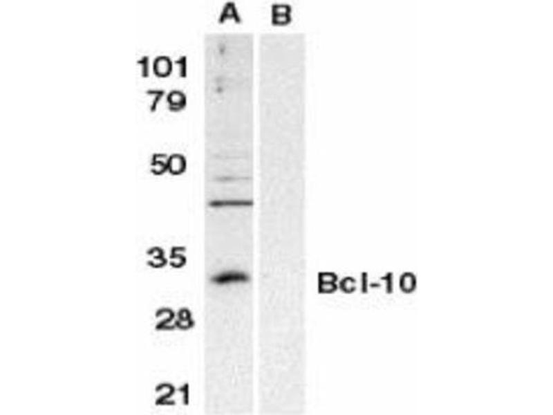 Western Blotting (WB) image for anti-BCL10 antibody (B-Cell CLL/lymphoma 10) (ABIN4283295)