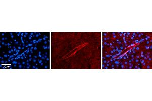 Image no. 4 for anti-Apolipoprotein B mRNA Editing Enzyme, Catalytic Polypeptide-Like 3G (APOBEC3G) (N-Term) antibody (ABIN2777994)