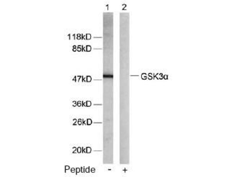 Western Blotting (WB) image for anti-GSK3 alpha antibody (Glycogen Synthase Kinase 3 alpha) (ABIN257307)
