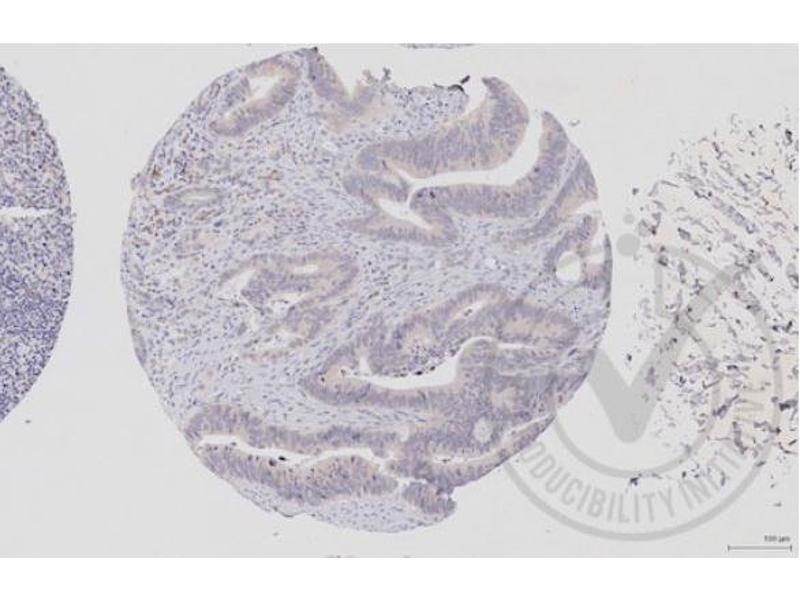 Immunohistochemistry (IHC) image for anti-RAF1 antibody (V-Raf-1 Murine Leukemia Viral Oncogene Homolog 1) (AA 25-60) (ABIN733208)