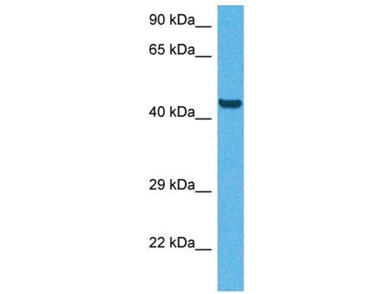 Western Blotting (WB) image for anti-CD36 Molecule (thrombospondin Receptor) (CD36) (N-Term) antibody (ABIN2783229)