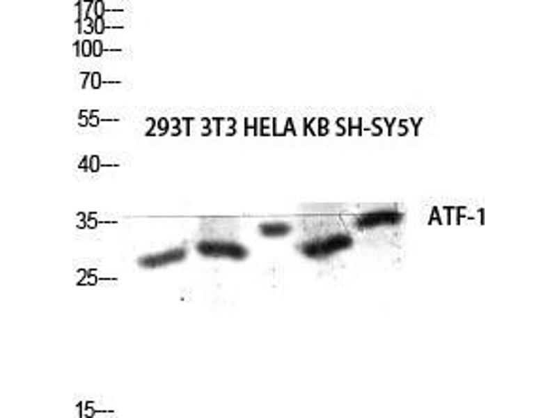 Western Blotting (WB) image for anti-Activating Transcription Factor 1 (AFT1) (C-Term) antibody (ABIN3183410)