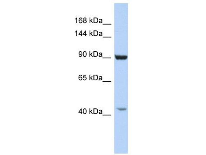 Western Blotting (WB) image for anti-Glutamate Receptor Interacting Protein 1 (GRIP1) (C-Term) antibody (ABIN2779682)