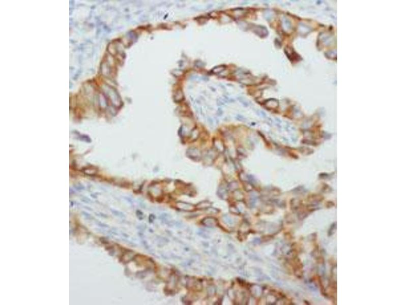 Immunohistochemistry (IHC) image for anti-Tumor Necrosis Factor antibody (TNF) (C-Term) (ABIN1582064)