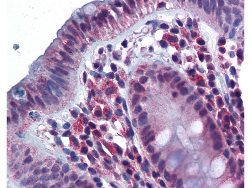 Immunohistochemistry (IHC) image for anti-CD180 Molecule (CD180) (N-Term) antibody (ABIN343899)