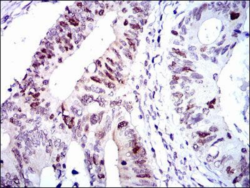 Immunohistochemistry (IHC) image for anti-Cyclin-Dependent Kinase 2 (CDK2) antibody (ABIN1845617)