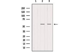 Image no. 4 for anti-Peroxisome Proliferator-Activated Receptor gamma (PPARG) antibody (ABIN6264371)
