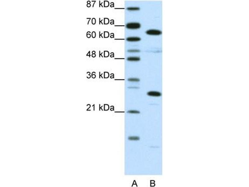 Western Blotting (WB) image for anti-High Mobility Group Box 4 (HMGB4) (C-Term) antibody (ABIN183849)