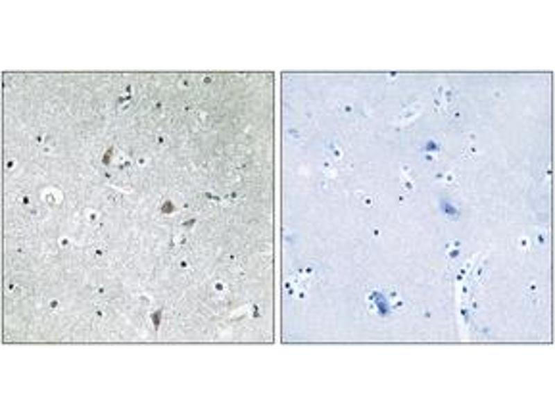 Immunohistochemistry (IHC) image for anti-Mechanistic Target of Rapamycin (serine/threonine Kinase) (FRAP1) (AA 2415-2464), (pSer2448) antibody (ABIN1531910)