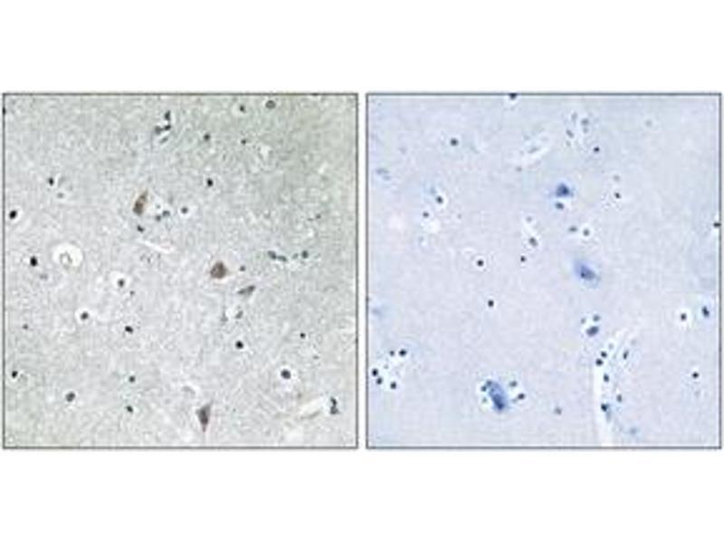 Immunohistochemistry (IHC) image for anti-Mechanistic Target of Rapamycin (serine/threonine Kinase) (FRAP1) (AA 2415-2464), (pSer2448) antibody (ABIN1531910)