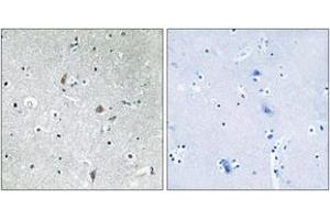 Immunohistochemistry (IHC) image for anti-Mechanistic Target of Rapamycin (serine/threonine Kinase) (FRAP1) (pSer2448), (AA 2415-2464) antibody (ABIN1531910)