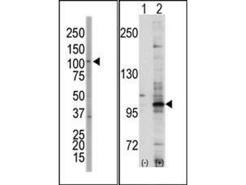 Western Blotting (WB) image for anti-EPH Receptor A7 (EPHA7) (C-Term) antibody (ABIN359804)