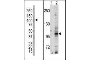 Western Blotting (WB) image for anti-EPH Receptor A7 antibody (EPHA7) (C-Term) (ABIN359804)