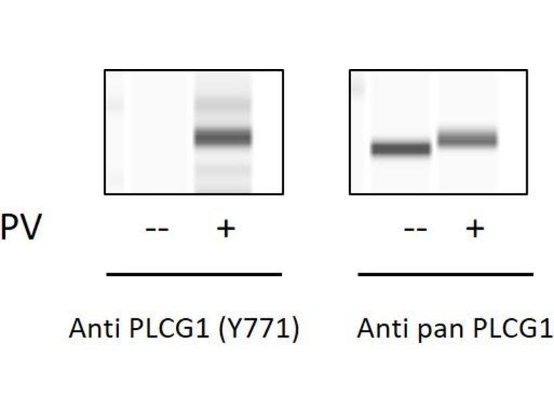 phospholipase C, gamma 1 (PLCG1) ELISA Kit (3)