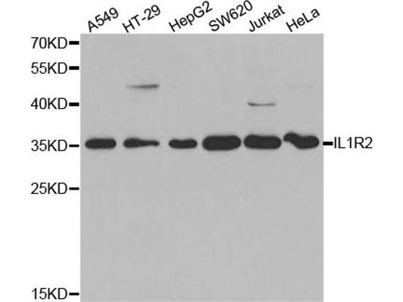 Western Blotting (WB) image for anti-Interleukin 1 Receptor, Type II (IL1R2) antibody (ABIN1875419)