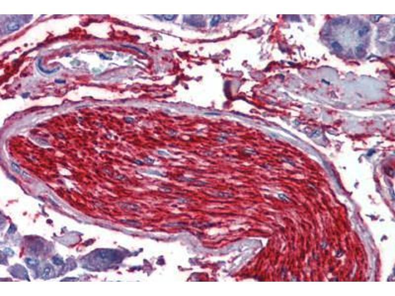 Immunohistochemistry (IHC) image for anti-alpha Tubulin (TUBA1) (Subunit alpha) antibody (ABIN960542)