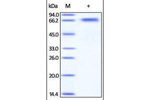 Image no. 1 for Beta-secretase 1 (BACE1) (AA 22-457) protein (ABIN2180626)