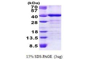 Image no. 1 for Translocase of Outer Mitochondrial Membrane 34 (TOMM34) (AA 1-309) protein (His tag) (ABIN5853024)