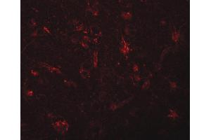 Image no. 3 for anti-Zinc Finger CCCH-Type Containing 12C (ZC3H12C) (N-Term) antibody (ABIN6656904)