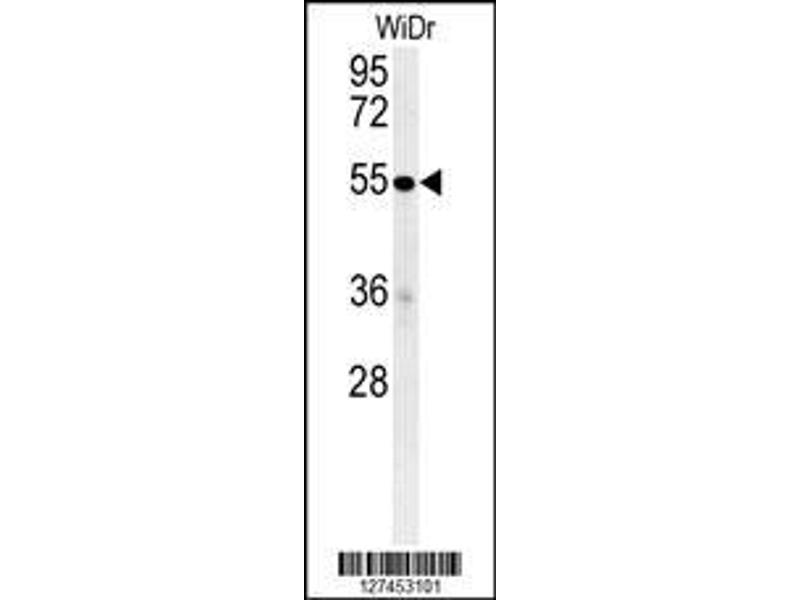 Western Blotting (WB) image for anti-Complement Component 4 Binding Protein, alpha (C4BPA) (AA 470-499), (C-Term) antibody (ABIN652149)