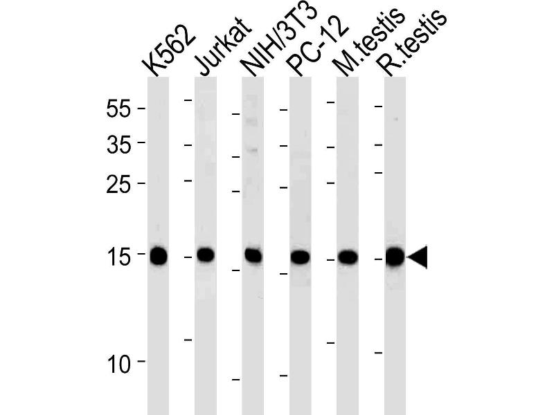 Western Blotting (WB) image for anti-Ubiquitin-Conjugating Enzyme E2L 3 (UBE2L3) (AA 106-135), (C-Term) antibody (ABIN1881966)
