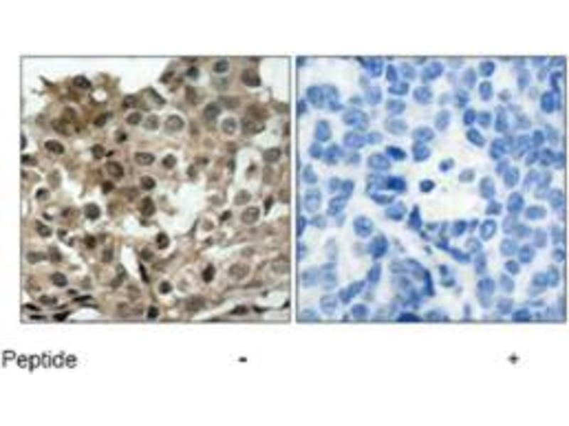 Immunohistochemistry (IHC) image for anti-Forkhead Box O3 (FOXO3) antibody (ABIN546257)