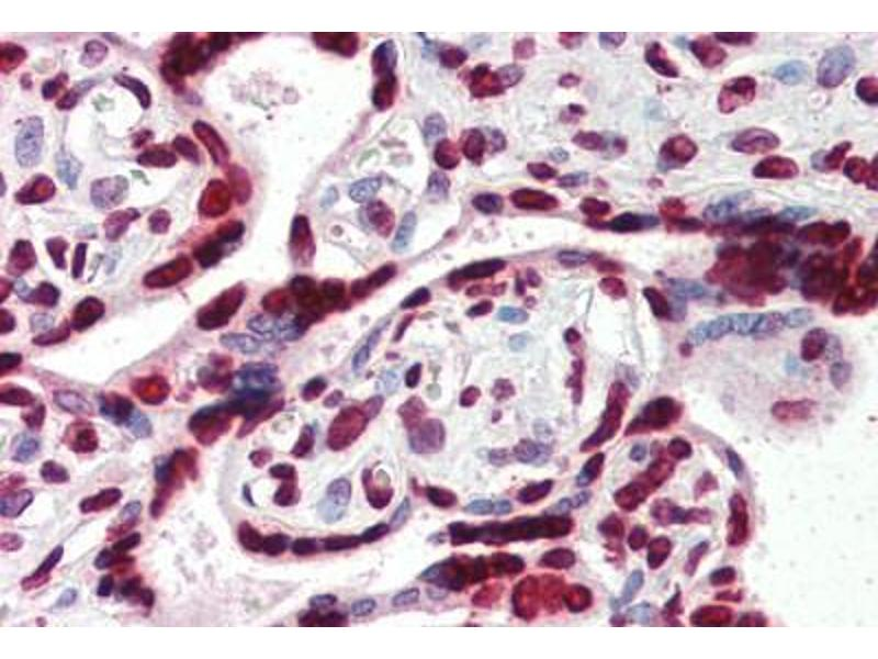 Immunohistochemistry (Paraffin-embedded Sections) (IHC (p)) image for anti-High Mobility Group AT-Hook 1 (HMGA1) (AA 12-23) antibody (ABIN364402)