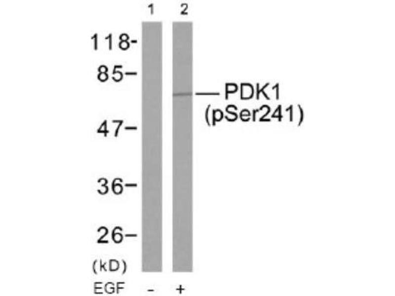 Western Blotting (WB) image for anti-PDPK1 antibody (3-phosphoinositide Dependent Protein Kinase-1) (pSer241) (ABIN4344570)