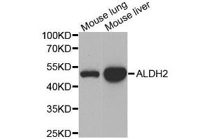 Image no. 2 for anti-Aldehyde Dehydrogenase 2 Family (Mitochondrial) (ALDH2) antibody (ABIN3021779)