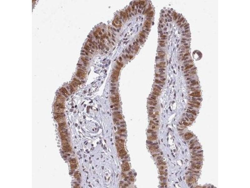 Image no. 1 for anti-Homeobox B7 (HOXB7) antibody (ABIN4319716)