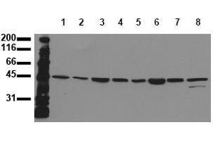 Western Blotting (WB) image for anti-MAP2K7 antibody (Mitogen-Activated Protein Kinase Kinase 7) (ABIN126842)