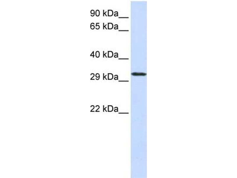 Western Blotting (WB) image for anti-Chromosome 21 Open Reading Frame 2 (C21orf2) (N-Term) antibody (ABIN405767)