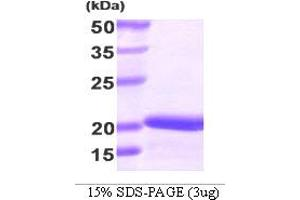 Image no. 1 for Stathmin 1 (STMN1) (AA 1-149) protein (His tag) (ABIN667094)