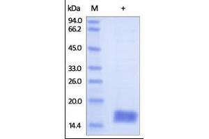 Image no. 1 for Cystatin SA (CST2) (AA 21-141) protein (His tag) (ABIN2180918)