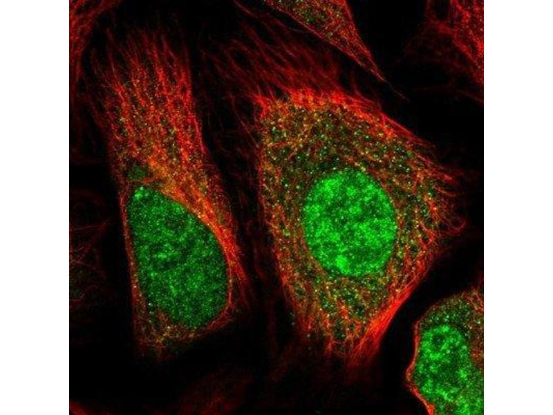 Immunofluorescence (IF) image for anti-Huntingtin (HTT) antibody (ABIN4320701)