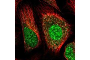 Immunofluorescence (IF) image for anti-Huntingtin antibody (HTT) (ABIN4320701)