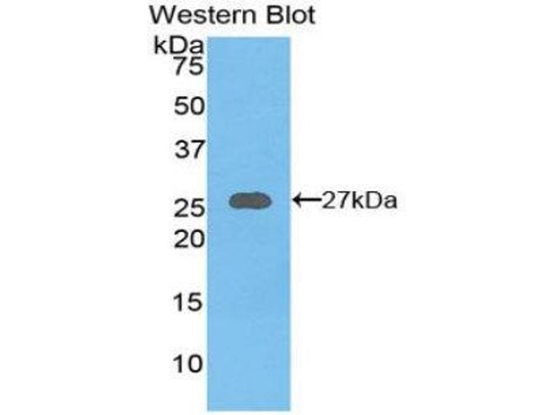 Western Blotting (WB) image for anti-Axin 1 (AXIN1) (AA 654-863) antibody (ABIN1858101)