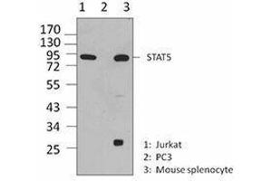 Western Blotting (WB) image for anti-Signal Transducer and Activator of Transcription 5A (STAT5A) antibody (ABIN2666295)